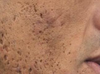 acne_littekens